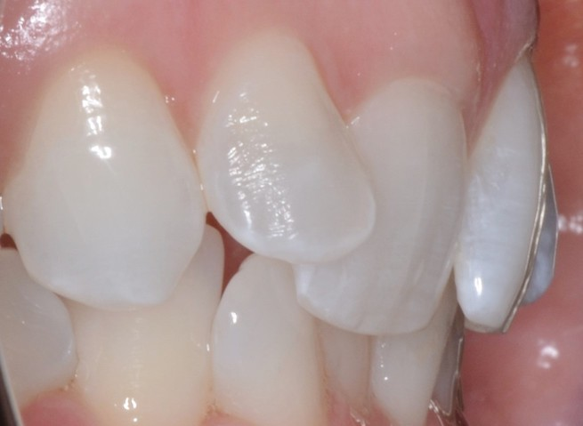 Dental Crowns Teeth Before Louisville Kentucky