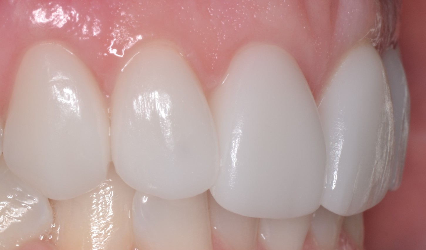 Dental Crowns Teeth After Louisville Kentucky