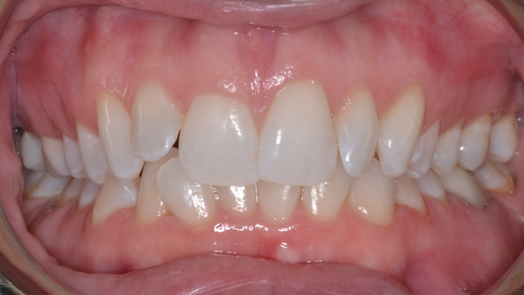 Teeth Griding Dental Crowns Before Louisville Kentucky