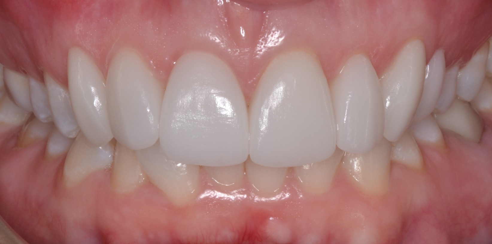 Teeth Griding Dental Crowns After Louisville Kentucky