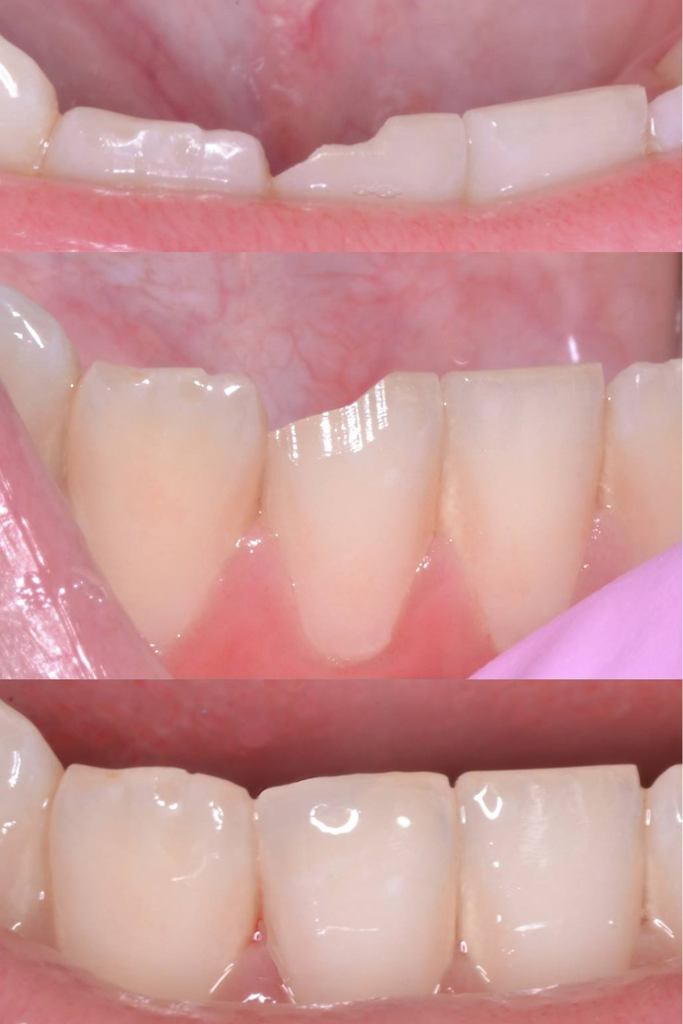 Dental Tooth-Colored Fillings Before Louisville Kentucky