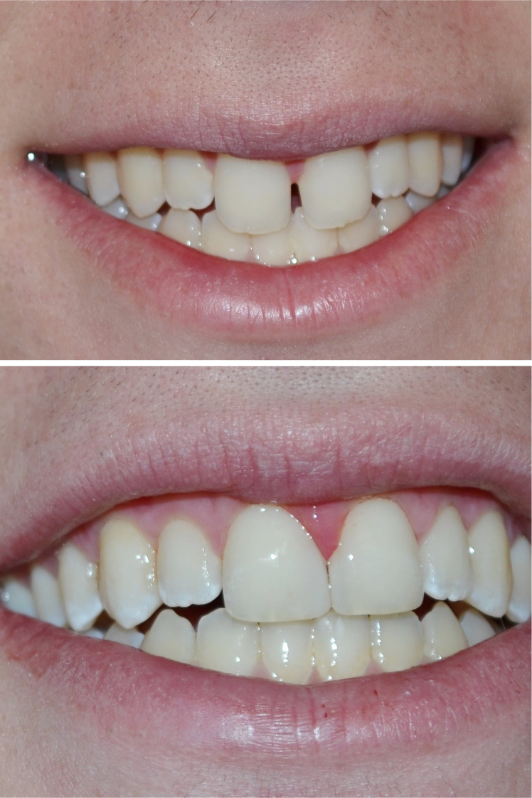 Dental Tooth-Colored Fillings After Louisville Kentucky