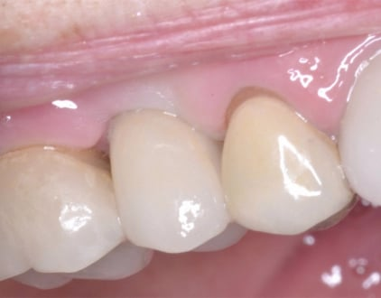 After Porcelain Crown Implant Louisville Kentucky
