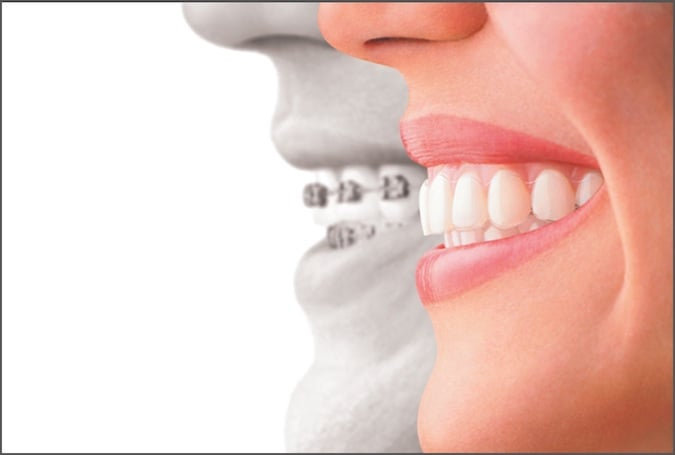 After Invisalign Braces Aligners Louisville Kentucky