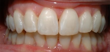 Dental Short Term Orthodontics Adult Cosmetic Braces After Louisville Kentucky