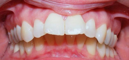 Dental Short Term Orthodontics Adult Cosmetic Braces Before Louisville Kentucky