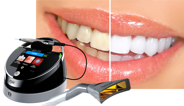 Laser Teeth Whitening Foster Amp Foster Family Dental